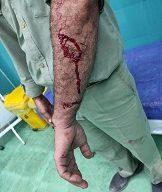 محیط بان شوشتری در درگیری با شکارچیان متخلف مجروح شد