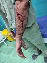 مجروح شدن محیط بان شوشتر در برخورد با شکارچی غیرمجاز
